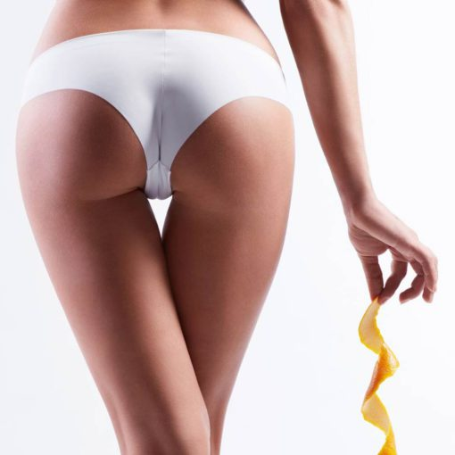 Cellulite verschwindet mit dem Anti-Cellulite Gel Cellu-Repair Gel von Shape-Line.